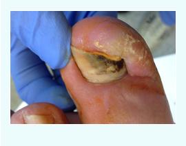ingrowing toe nails